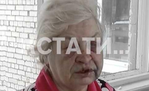 Травмы, несовместимые с возрастом — 64-летняя пенсионерка стала жертвой жестокого нападения