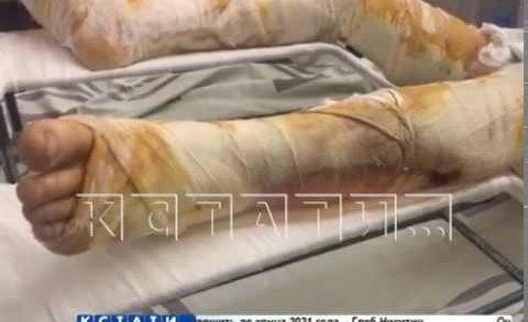 Пятиклассники облили бензином и подожгли 8-летнего ребенка