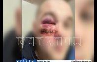 Расстрел в воспитательных целях — два человека пострадали, один стал калекой