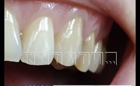 Стоматологи, сбежавшие с деньгами клиентов, оставили их без зубов
